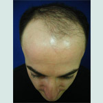 ervaring haarkliniek Turkije