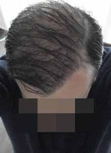 Ervaring haartransplantatie