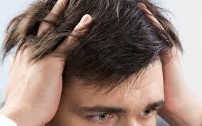 Verwachtingen Haartransplantatie