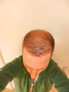 Haartransplantatie Ervaring - N