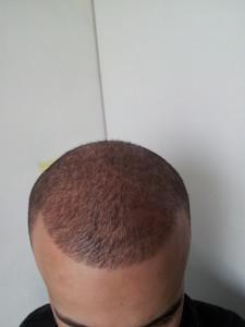 Y Haartransplantatie Ervaring
