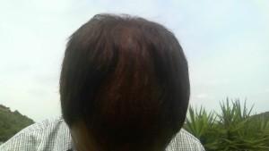 haartransplantatie ervaring bovenkant