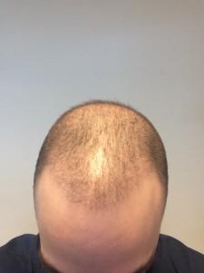 Haartransplantatie Ervaring Februari 2015