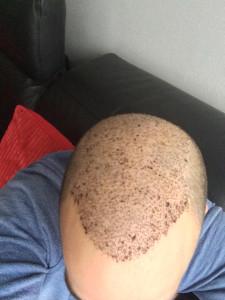 9 dagen na de behandeling