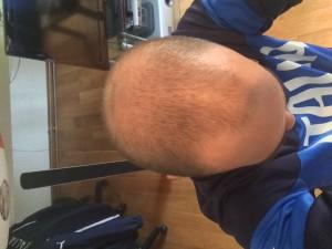 A voor de haartransplantatie