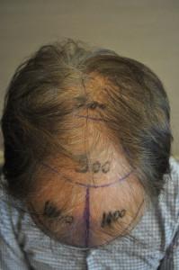 haartransplantatie ervaring