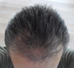 Haartransplantatie Ervaring Turkije