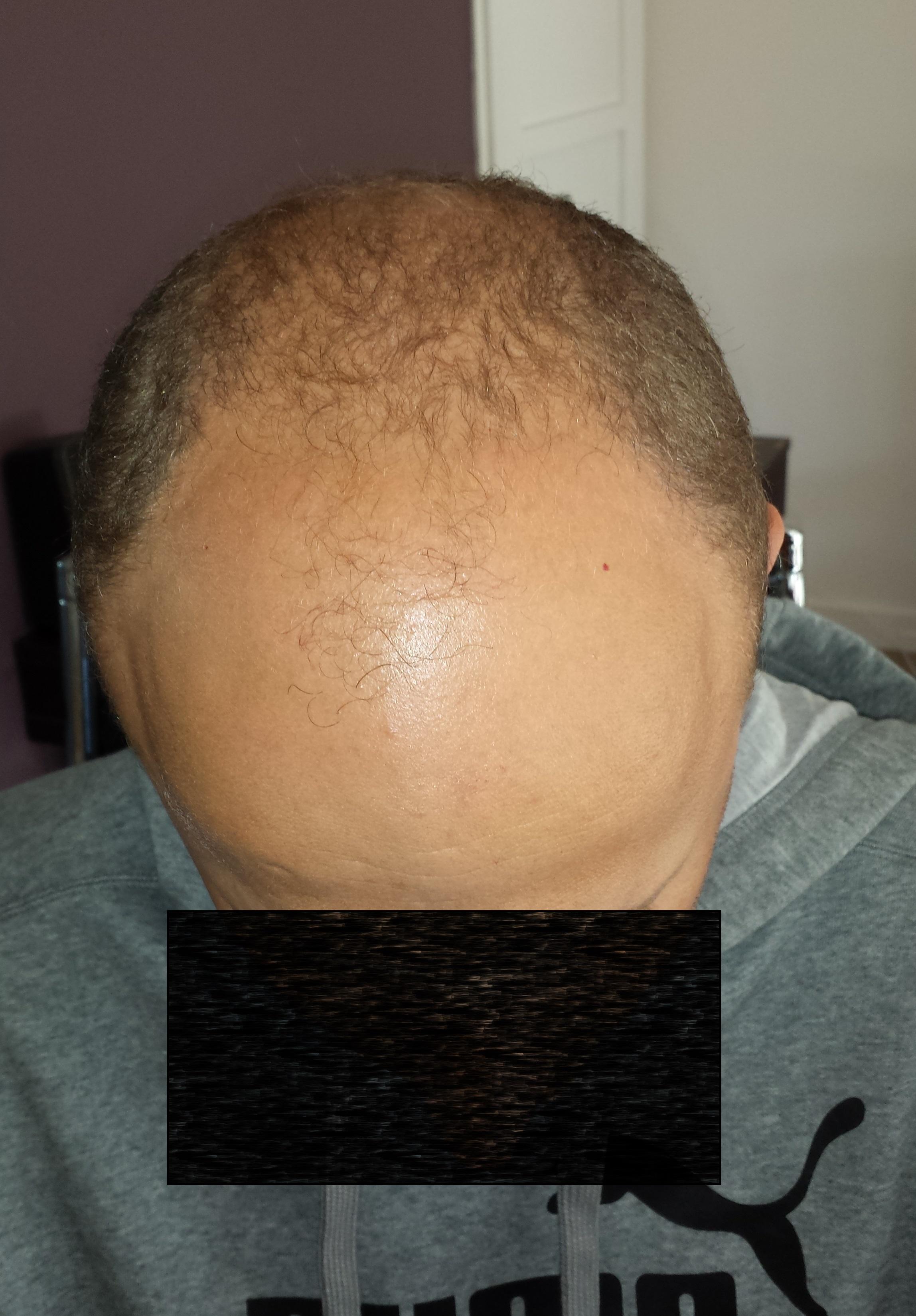 Situatie voorzijde voor de 1ste behandeling