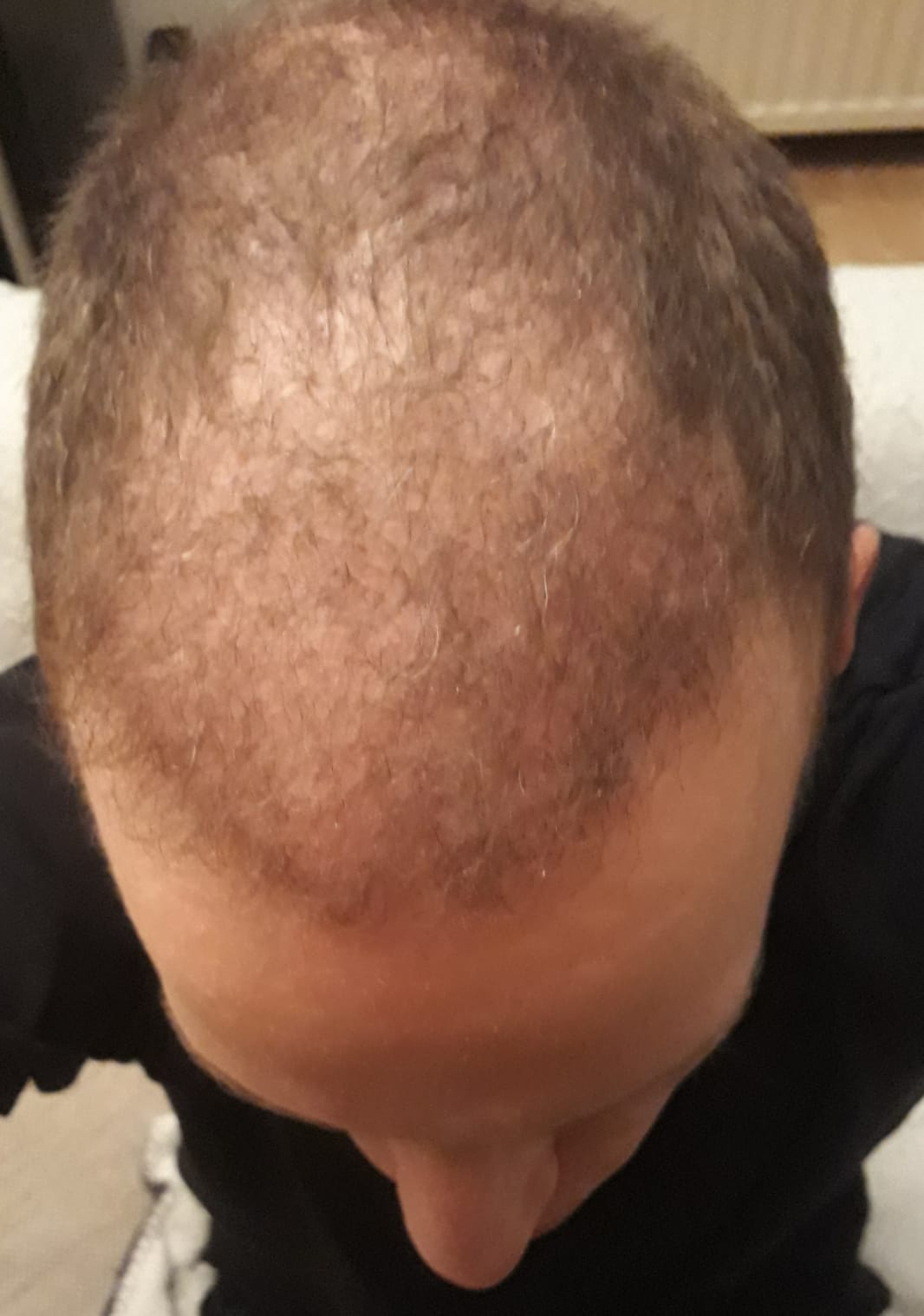 Bovenkant 4 maanden