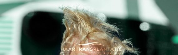 bio fibre hair implantatie